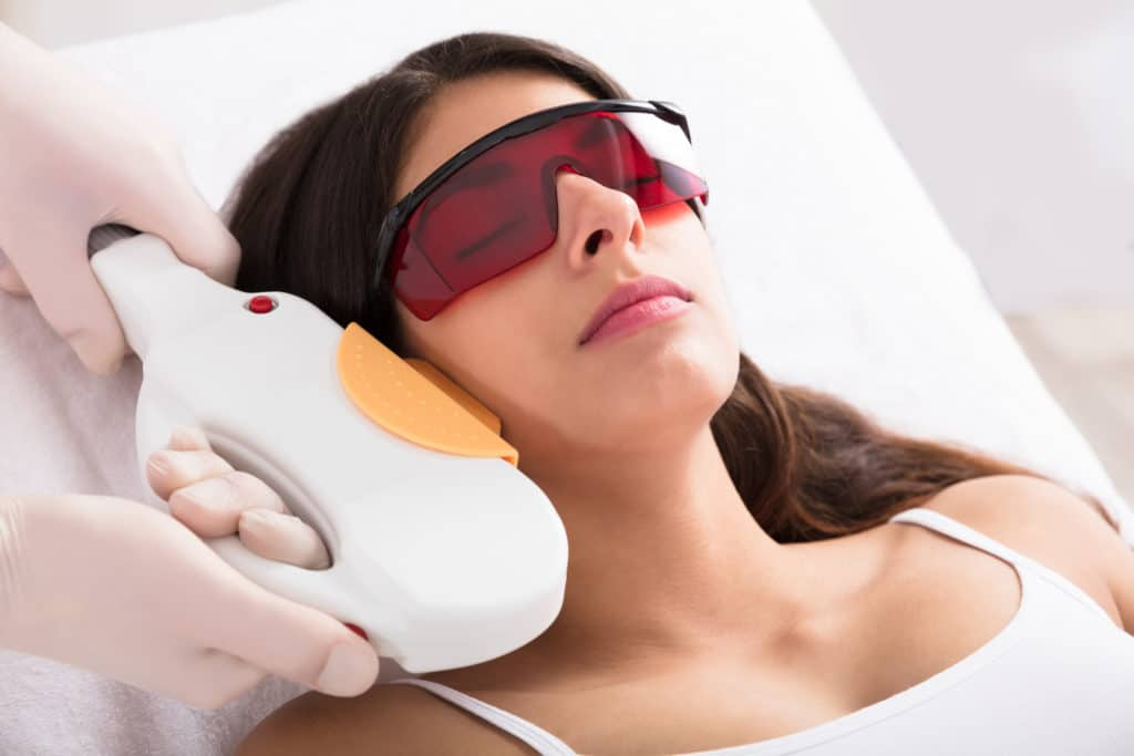 Laser Epilation Treatment On Woman's Chin